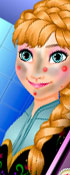 Anna Skin Treatment